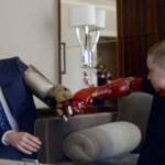 Garoto recebe prótese de braço do Homem de Ferro
